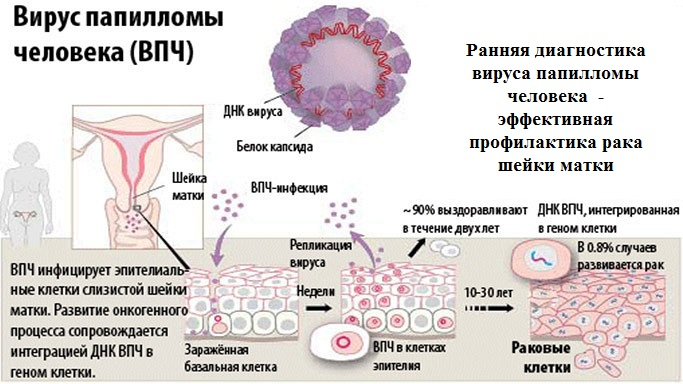 Пцр-вирус папилломы человека тип 16 18 - Лечение ВПЧ высокого онкогенного риска 16, 31, 18 и 39