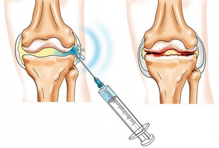 recenzii de balsam corporal durere severă în diagnosticul articulației șoldului